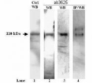 GTX23625 - ATP2A2 / SERCA2