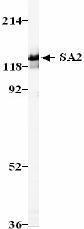 GTX24464 - STAG2 / Stromal antigen 2