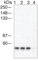 GTX24472 - Arrestin beta-1 / ARRB1