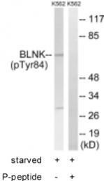 GTX24474 - B-cell linker protein / BLNK