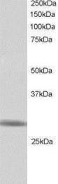 GTX24542 - RNF141