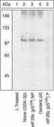 GTX24775 - EIF2B5 / EIF2BE