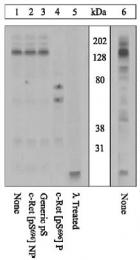 GTX24778 - Retinoblastoma-associated protein / RB1