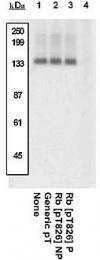 GTX24779 - Retinoblastoma-associated protein / RB1