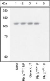 GTX24787 - Retinoblastoma-associated protein / RB1