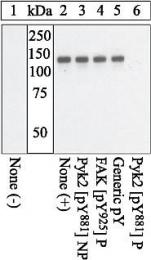 GTX24801 - FAK1 / PTK2