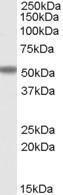 GTX25060 - FOXC2 / FKHL14 / MFH1