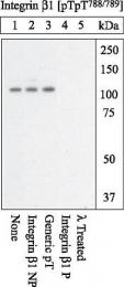 GTX25189 - CD29 / Integrin beta-1
