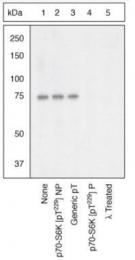 GTX25231 - RPS6KB1 / STK14A