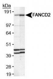 GTX25360 - FANCD2