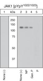 GTX25493 - Tyrosine-protein kinase JAK1