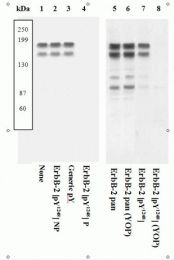 GTX25654 - CD340 / ERBB2 / HER2