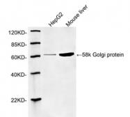 GTX25820 - 58K Golgi Protein