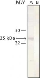 GTX26314 - Cathepsin L1