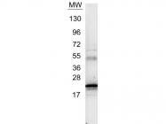 GTX26672 - Interleukin-6 / IL6