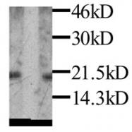 GTX27210 - Leptin