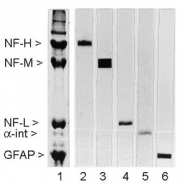 GTX27256 - Neurofilament  M (160 kD)