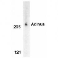 GTX27352 - Acinus / ACIN1