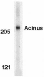 GTX27354 - Acinus / ACIN1