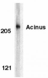 GTX27355 - Acinus / ACIN1