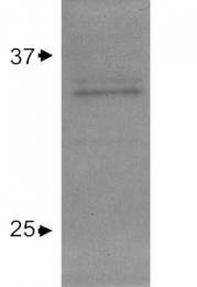 GTX27620 - Apolipoprotein E / Apo E