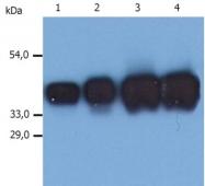 GTX27754 - Cytokeratin 19