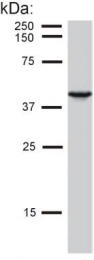 GTX27755 - Cytokeratin 19