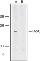 GTX28394 - CARD5 / PYCARD / ASC