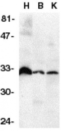GTX28405 - TNFRSF6B / DCR3