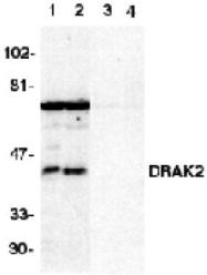 GTX28419 - STK17B / DRAK2