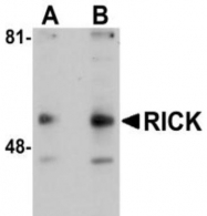 GTX28427 - RIPK2