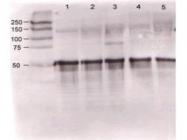 GTX28451 - Angiopoietin-1