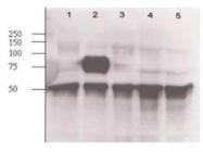 GTX28452 - Angiopoietin-2