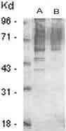 GTX29337 - Phosphothreonine
