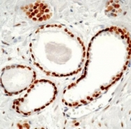 GTX29474 - Androgen receptor