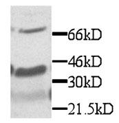 GTX29819 - Fractalkine / CX3CL1
