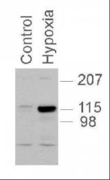 GTX30114 - HIF2A / HIF2 alpha