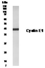 GTX30234 - Cyclin E1