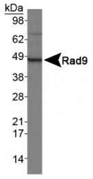 GTX30297 - RAD9A