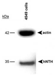 GTX30397 - NTH1