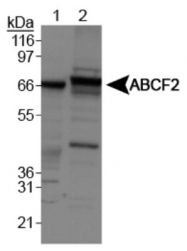 GTX30469 - ABCF2