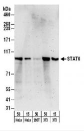 GTX30497 - STAT6