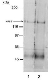 GTX30599 - NPC1L1