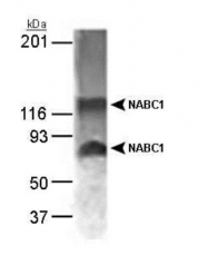 GTX30622 - BCAS1 / NABC1