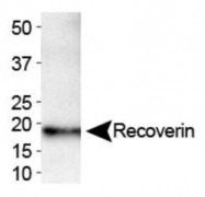 GTX30629 - Recoverin