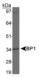 GTX30648 - DLX4 / BP1