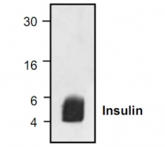 GTX30774 - Insulin