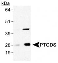 GTX30911 - PTGDS