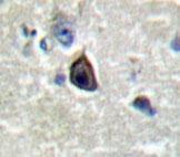 GTX31032 - Glutamate receptor 4 / GLUR4