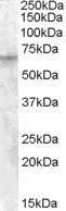 GTX31092 - NMDAR2D